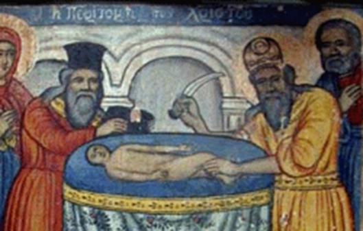 la-circuncision